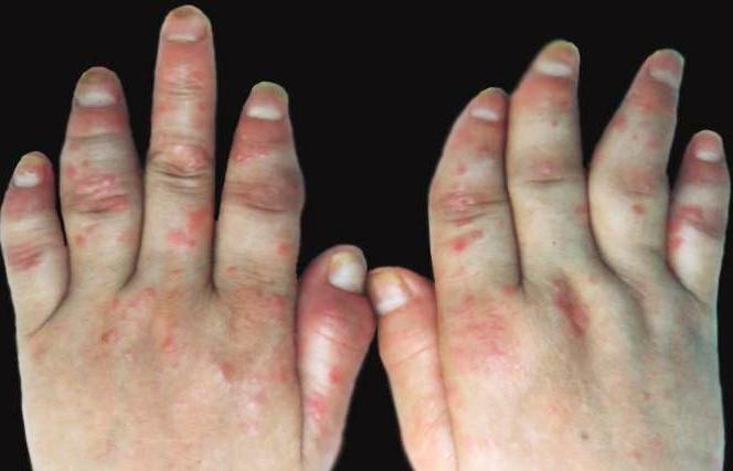 关节炎型银屑病的病因