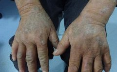 牛皮癣皮肤病有什么症状