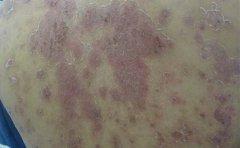 患者的牛皮癣可以怎么治呢